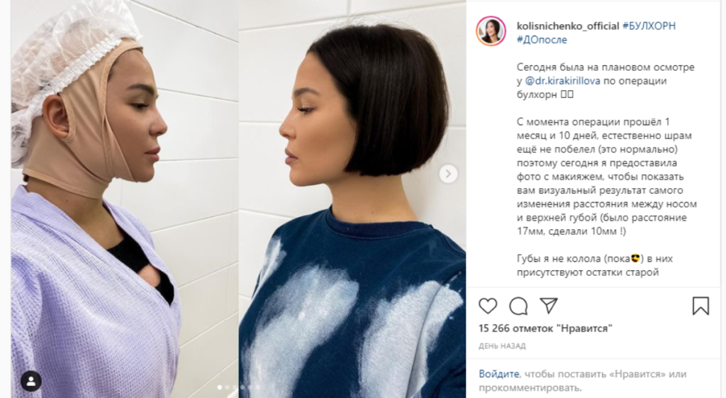 Звезда Дом 2 Катя Колисниченко поделилась результатом очередной пластики лица – фотографии